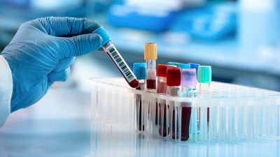 Blood Screening Market : Global Market Size, Growth factors, Dynamics, Regional Share, Trends, Top Key Players, Competitor Analysis 2015 to 2020  and Forecast 2021 to 2027
