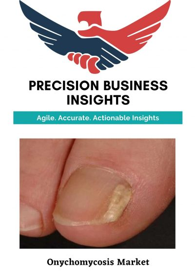 Onychomycosis Market: Global Market Estimation, Dynamics, Regional Share, Trends, Competitor Analysis 2015-2020 and Forecast 2021-2027